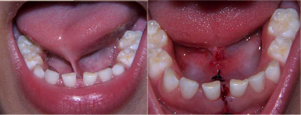 laser cosmetic dentistry